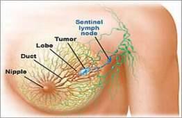 kanker-payudara2